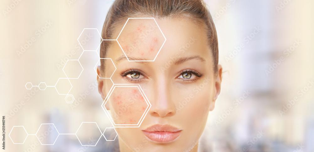Fototapeta Post-Acne Marks /Treating Acne Scars