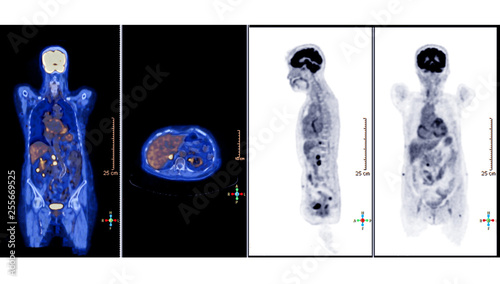 PET Scan image of whole body Comparison Axial , Coronal and sagittal plane  in patient hepatic cell carcinoma recurrence treatment by PET CT Scanner. rectangle HD size. - 255669525