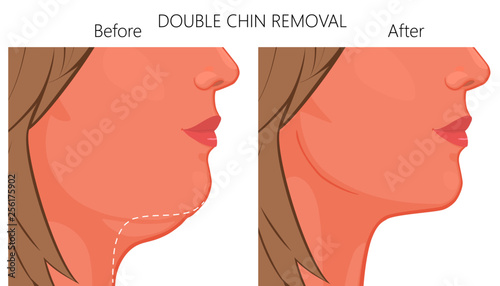 Fotografía  Vector illustration of a double chin removal close up view