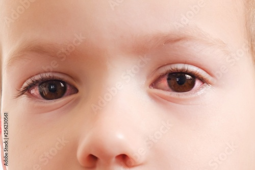 Child conjunctivitis red eye with infection,   health. Canvas Print