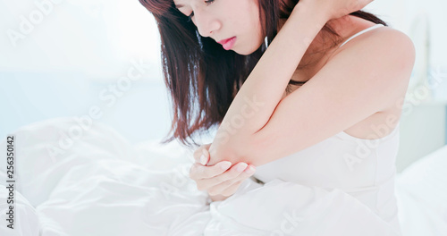 Fotomural woman scratching arm and elbow