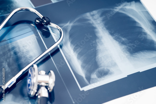 Fotografía  x-ray of the lungs with stethoscope. concept lung disease.