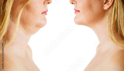 Fotografía  Double chin fat or dewlap correction, before and after