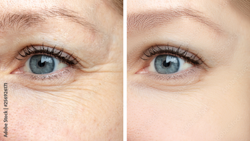 Fototapeta Woman face, eye wrinkles before and after treatment - the result of rejuvenating cosmetological procedures of biorevitalization, botox and pigment spots removal