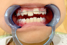 An Asian Girl Open Her Mouth With Mouth Gag And Show Removable Appliance With Anterior Spring Braces Because Of Anterior Cross Bite At Pranburi Hospital. Pranburi, Thailand March 1, 2019