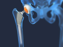 Function Of A Hip Joint Implan...