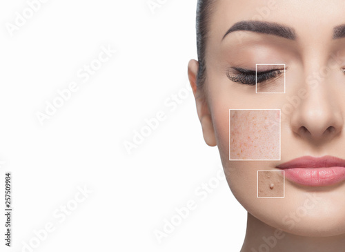 Fotografia Portrait of a beautiful woman on a white background, on the face are visible areas of problem skin - wrinkles and freckles