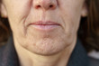 canvas print picture - Close up detail of the chin of a middle-aged woman