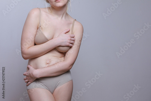 Obraz A woman with a figure after giving birth. Stretch marks on the belly. Close the body with his hands. Oppression and shame - fototapety do salonu