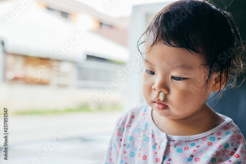 Valokuva  Asian little girl with snot runny nose.