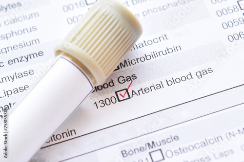 Blood sample tube with laboratory requisition form for arterial blood gas test Canvas Print