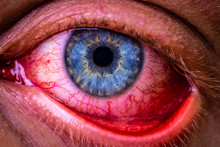 Close Up Of Bloodshot Eye With Red Veins
