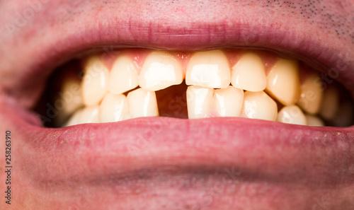 Fotografia  Yellow bad teeth
