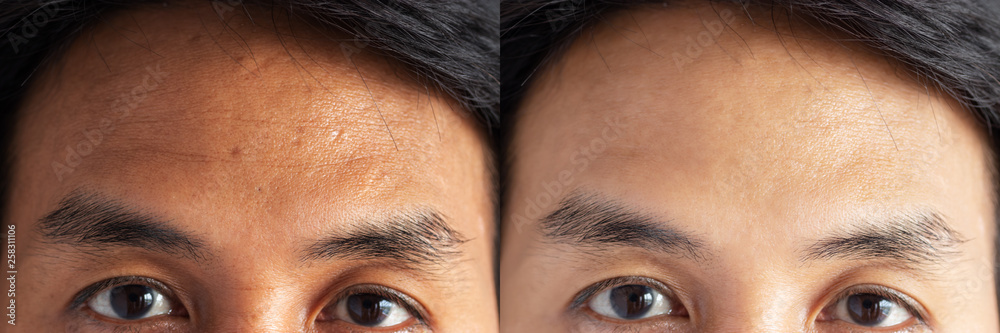 Fototapety, obrazy: two pictures compared effect Before and After treatment. skin with problems of freckles , pore , dull skin and wrinkles around forehead before and after treatment to solve skin problem for better skin