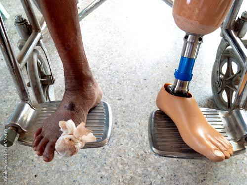 Photo amputated left leg with leg prosthesis