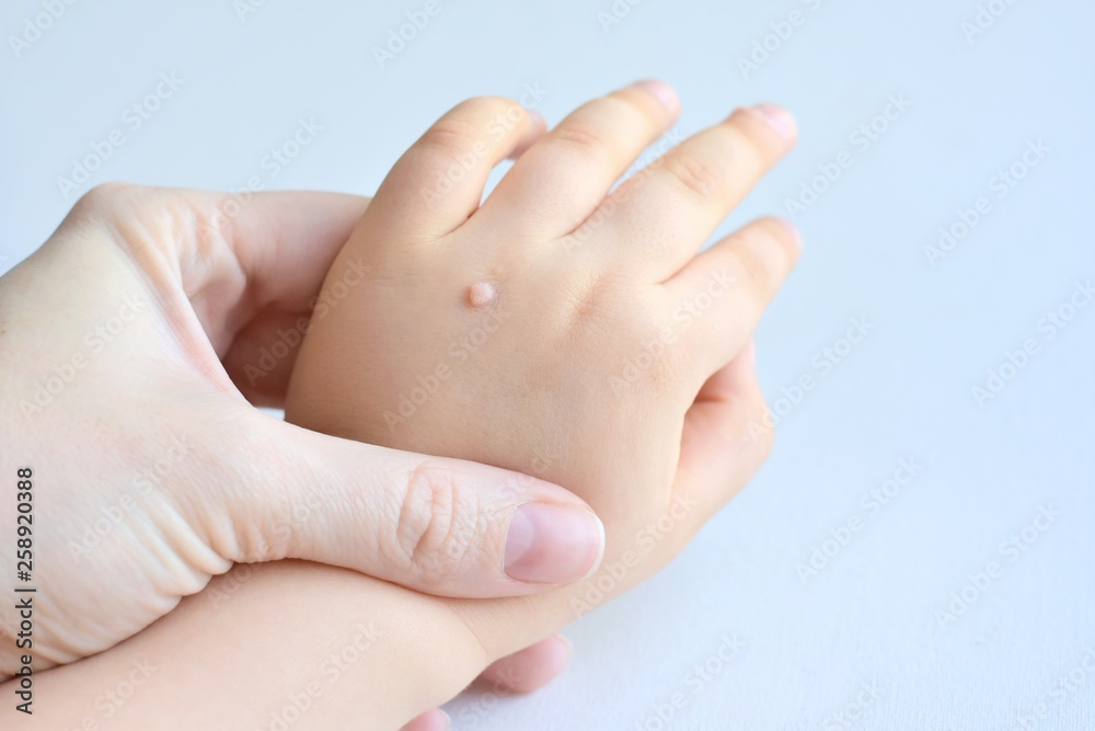 Fototapeta The doctor holds a small hand of a child affected with warts on little fingers and back of the hand. Papillomavirus in a child's hand and fingers. Pediatric dermatology. Skin diseases