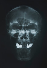X-ray Of The Scull