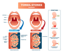 Tonsil Stones Vector Illustrat...