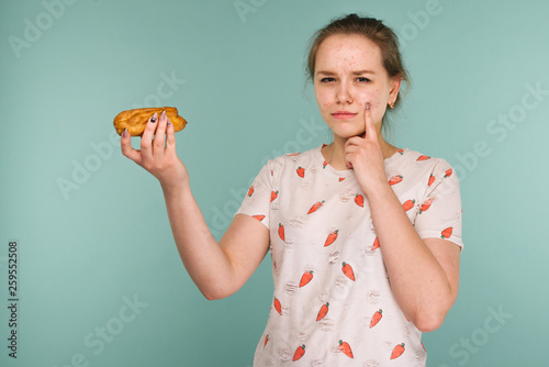 Portrait of pimply teen girl with cake points to acne on face