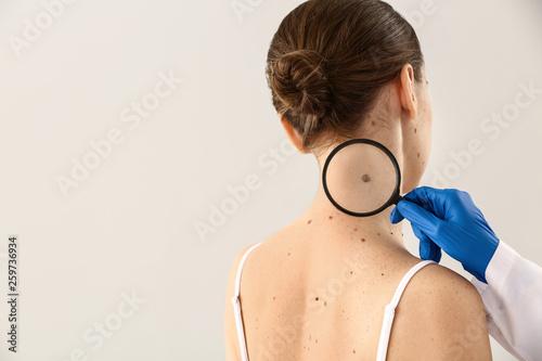 Fotografia Dermatologist examining moles of patient on light background