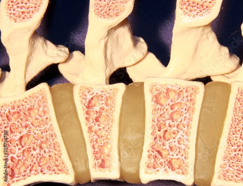 Fotomural  Model of spine showing porous bone marrow in case of osteoporosis