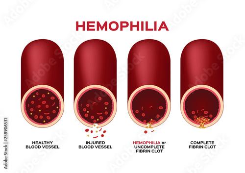 hemophilia or haemophilia and blood vessel vector / bleeding / wound Canvas Print