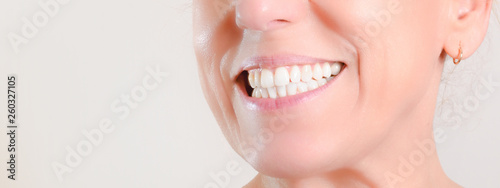 Fotografie, Obraz  Mature woman showing perfect natural white teeth on the side