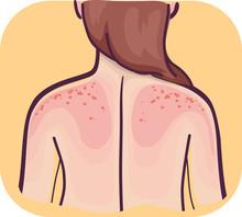 Back Symptoms Skin Sensitive Sunburn Illustration