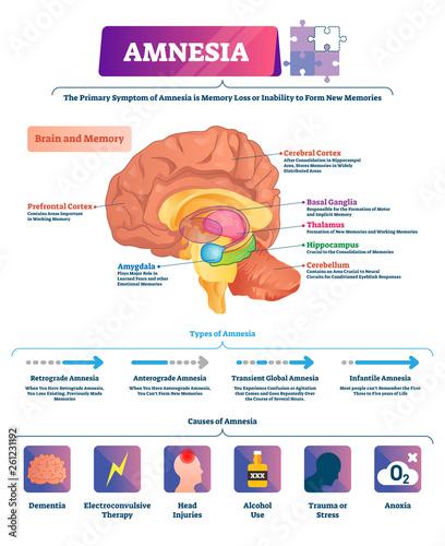 Photo Amnesia vector illustration