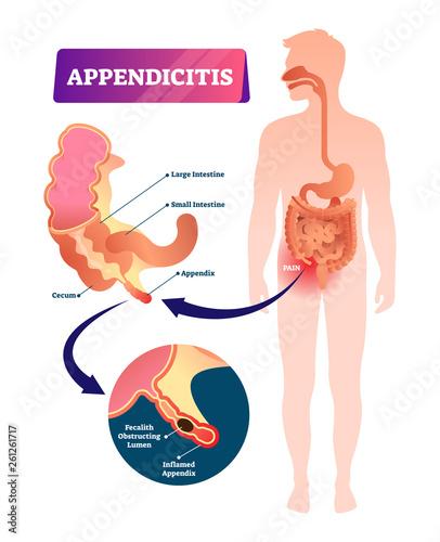 Appendicitis vector illustration Wallpaper Mural