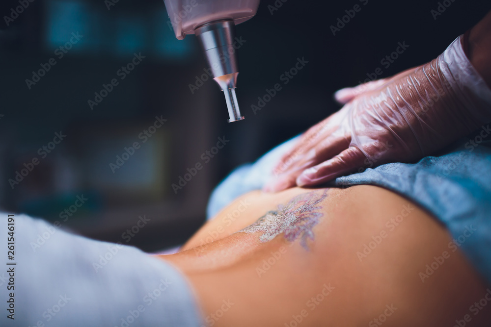 Fototapeta Cosmetologist with patient and professional tattoo removal laser in salon.