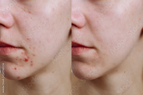 Photo Young woman before and after acne treatment, closeup