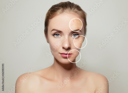 Fotografie, Obraz  woman face portrait with clear and pimpled skin