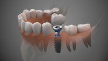 Tooth Human Implant. On1 Concept. Dental Prosthetic Innovation. 3d Illustration.