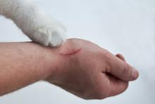 Scratch On A Man's Hand Made B...