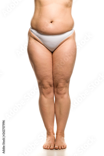 Belly, legs and waist of overweight woman on white background Canvas Print
