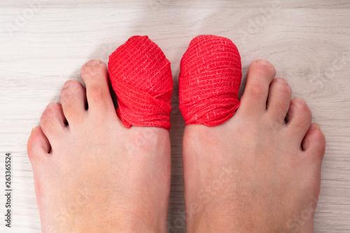 Bandage Around A Sore Toe Nail Fototapet