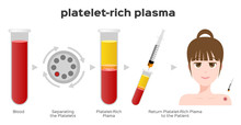 Platelet-Rich Plasma Procedure Stages / Prp / Centrifuge Vector