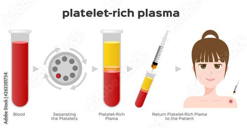 Cuadros en Lienzo Platelet-Rich plasma procedure stages / prp / Centrifuge vector