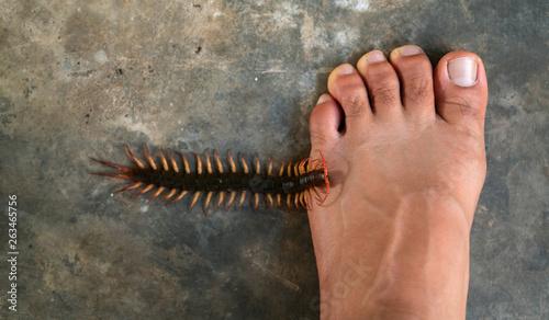 People were bitten by a centipede on their feet Fototapete
