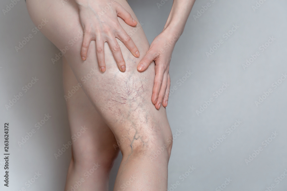 Fototapety, obrazy: Woman shows leg with varicose veins. The concept of human health and disease. Gray background