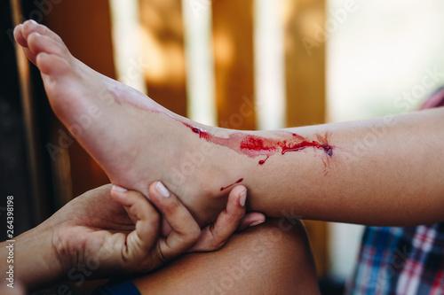 Obraz boy with a bleeding injury in leg - fototapety do salonu