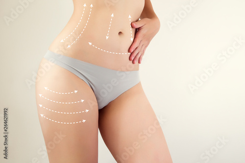 female figure highlighted with arrow symbols / liposuction marks