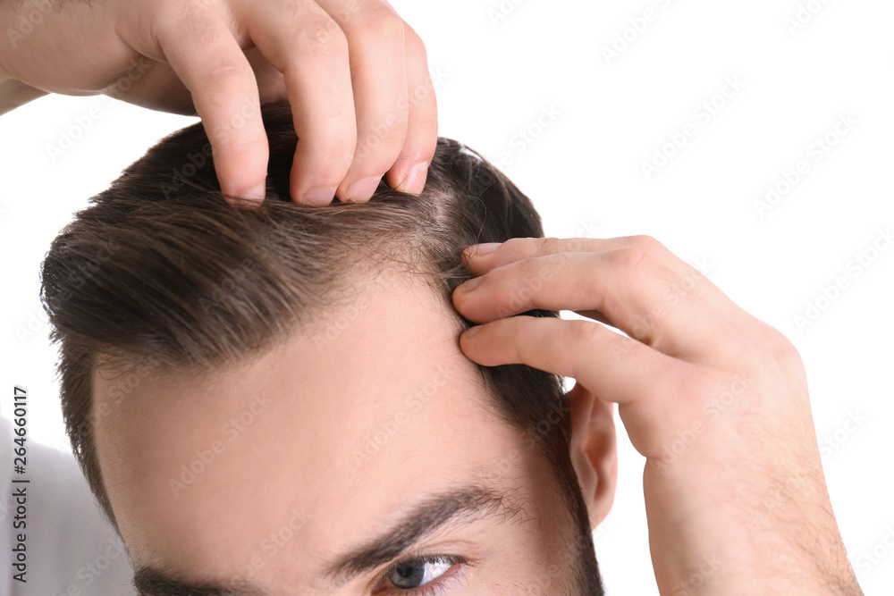 Fototapeta Young man with hair loss problem on white background, closeup