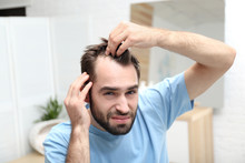 Young Man With Hair Loss Probl...