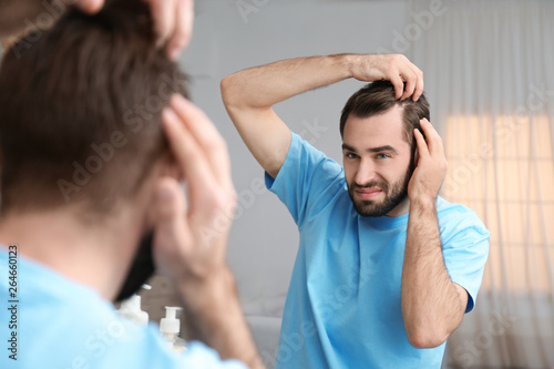 Fototapeta  Young man with hair loss problem in front of mirror indoors