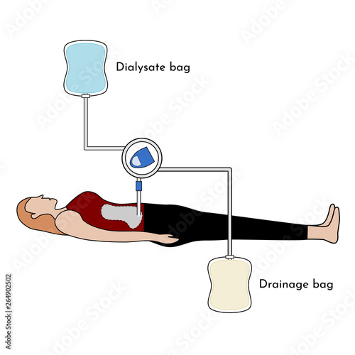 Photo Continuous Ambulatory Peritoneal Dialysis (CAPD) , vector illustration