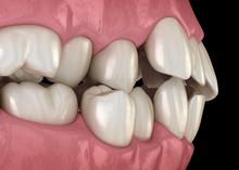 Abnormal Teeth Position, Ortho...