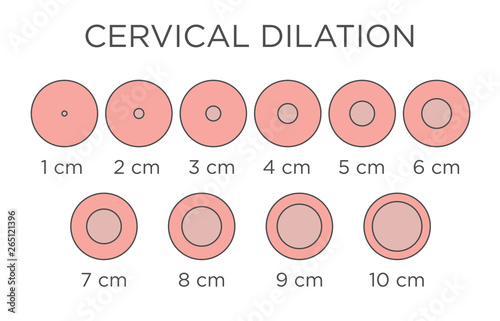 Valokuva Cervial Dilation Medical Illustration - chart in centimeters