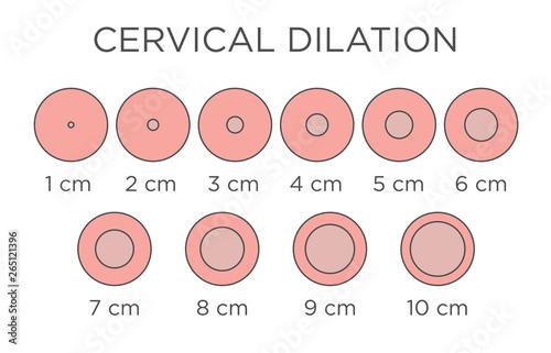 Fotografia, Obraz Cervial Dilation Medical Illustration - chart in centimeters
